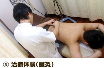 ④ 治療体験(鍼灸)